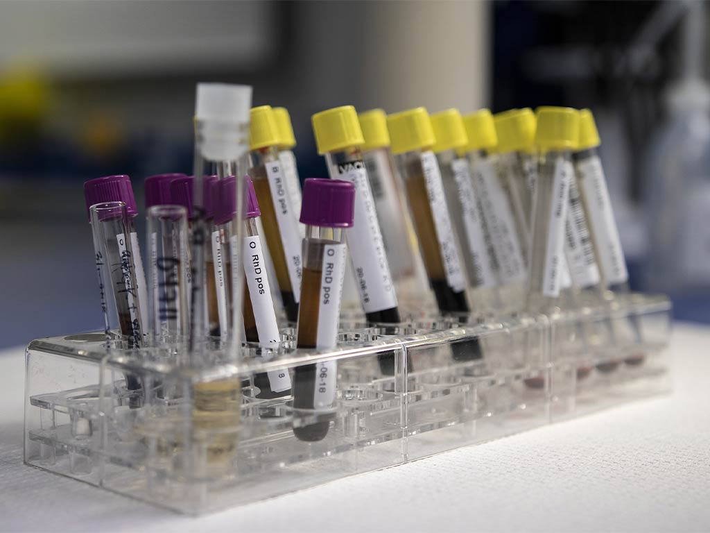 Labordiagnostik Naturheilpraxis Richthammer Weiden