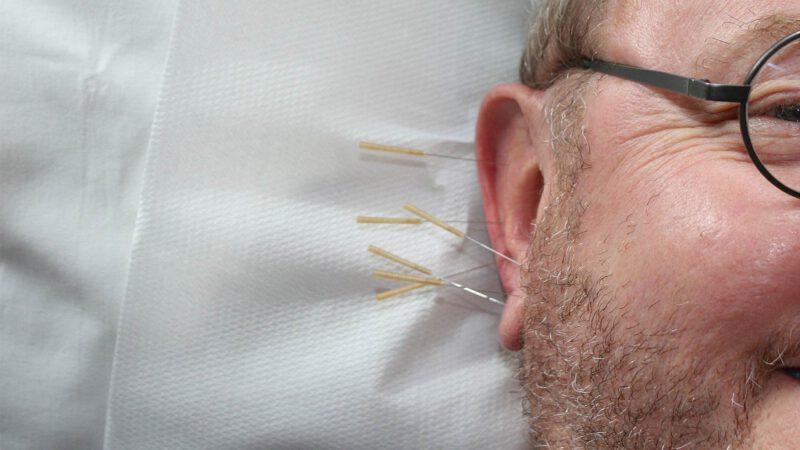 Ohrakupunktur Naturheilpraxis Richthammer Weiden